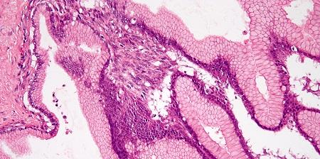 Tiroide neoplasie