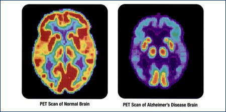 pet diagnosi alzheimer